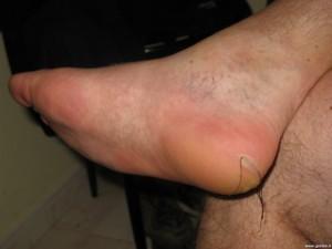 Blister treatment 1