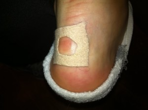 Blister treatment 2